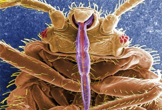 Image of bed bug under SEM