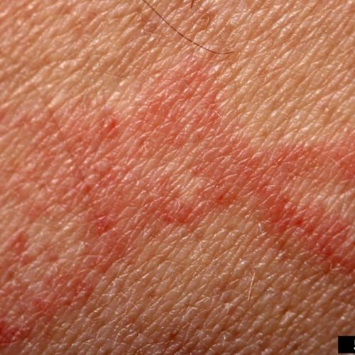 Image of inflammation effect three hours after bed bugs fed on human
